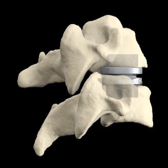 prodisc-C-and-Spine-Model-Composite-v2